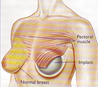 Breast Reconstruction (1/3)