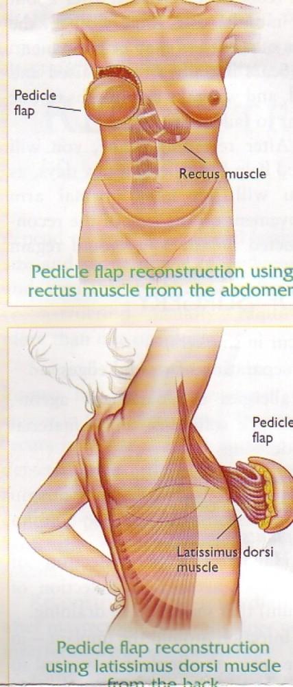 Breast Reconstruction (3/3)
